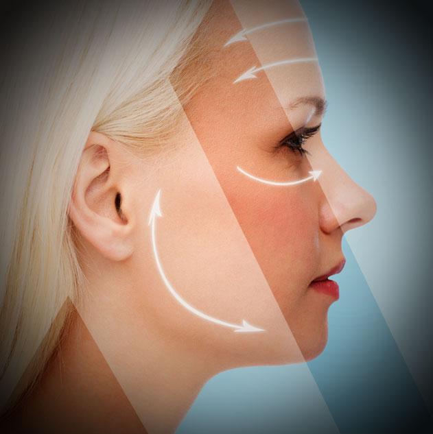 cervico facial lift turkey